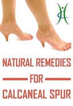 Natural Remedies For Calcaneal Spur