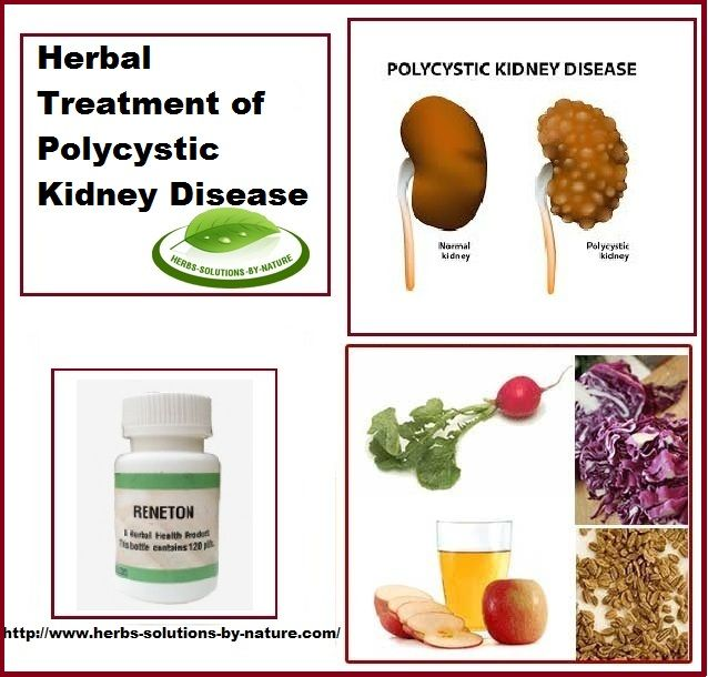 polycystic kidney disease causes and treatment Pkd is the fourth leading cause of kidney failure and affects approximately  a  doctor will establish a treatment protocol for autosomal dominant pkd only after.