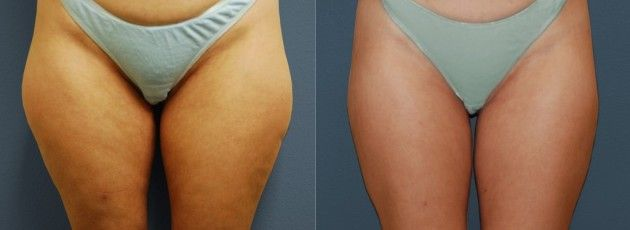 A good illustration to give an idea of what to expect from your laser lipo treatments