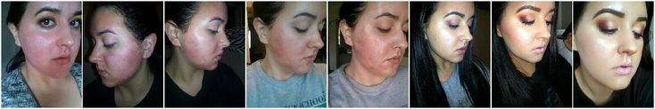 Licensed Master Aesthetician, Sarah, before, during and after pictures GlyMed Plus TCA 15 chemical peel! Amazing results! For more information about this peel visit --> http://www.glymedplus.com/store/display/332/42/professional-tca-peel-15-solution or call or corporate office at 1.800.676.9667 #professional #chemicalpeel #chemicalpeels #tcapeel #tca #peel #peels #Glymed #glymedplus #professionalonly #pigmentation #wrinkles #acne #vitamine #retinylpalmitate #treatskin #correctskin…
