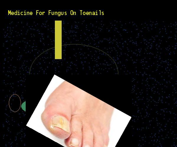 Medicine for fungus on toenails - Nail Fungus Remedy. You have nothing to lose! Visit Site Now