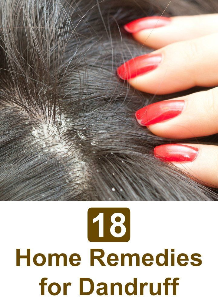 Dandruff can be controlled with easy to follow home remedies. It is true that home remedies take time to show results but they can effectively treat the problem completely.