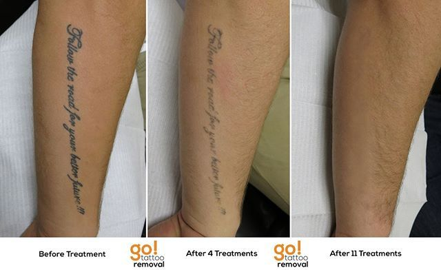 The Size Of A Tattoo Does Not Dictate How Quickly Or Slowly It Will Fade It S A Process And Takes Time Averagin Tattoo Removal Tattoos Laser Tattoo Removal