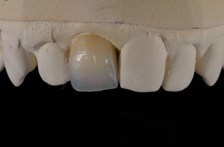Dental Porcelain Crown . . . #dental #dentallab #dentalassistant #dentalhygienist #dentalwork #dentallife #dentalart #dentaloffice #dentalcases #dentalschool #dentaltech #dentalworld #dentalstudent #dentaltechnician #dentalimplants #dentaldesign #dentalcrown  #dentist