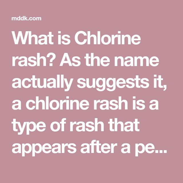 What is Chlorine rash? As the name actually suggests it, a chlorine rash is a type of rash that appears after a person has been exposed to chlorine. In the