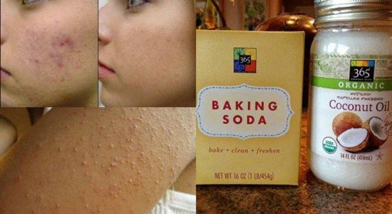 Amazing Coconut Oil and Baking Soda Recipe for Your Skin