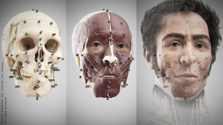 Patient csi facial reconstruction look you