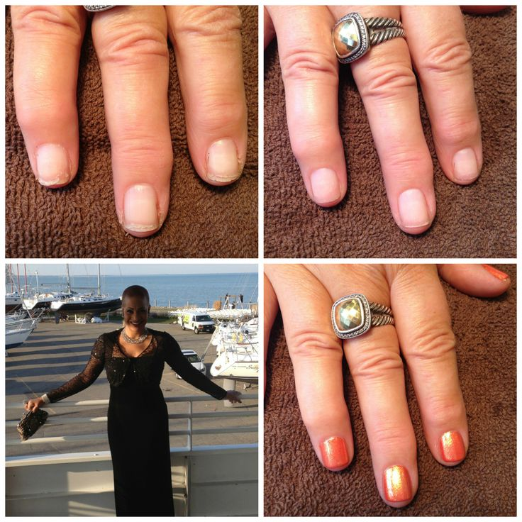 13 best The IBX Treatment System images on Pinterest   Gel nail ...