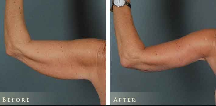 Arm lift with liposuction 9 – Liposuction before and after – #arm #Lift #Liposuc…