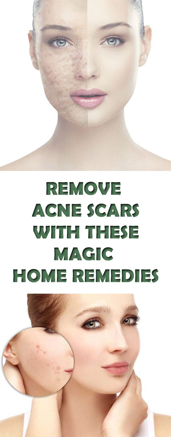 Acne Scars  Top Best Home Remedies For Acne Scars #AcneScars