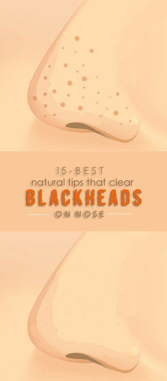 How To Remove Blackheads On Nose At Home Permanently?