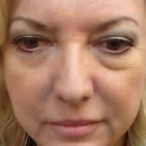 anti-wrinkle-cream-reviews