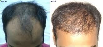 There are many reasons for hair loss but 95% of all cases in men are due to a condition called androgenetic alopecia. This is commonly referred to as male pattern baldness. #haircarecentre,