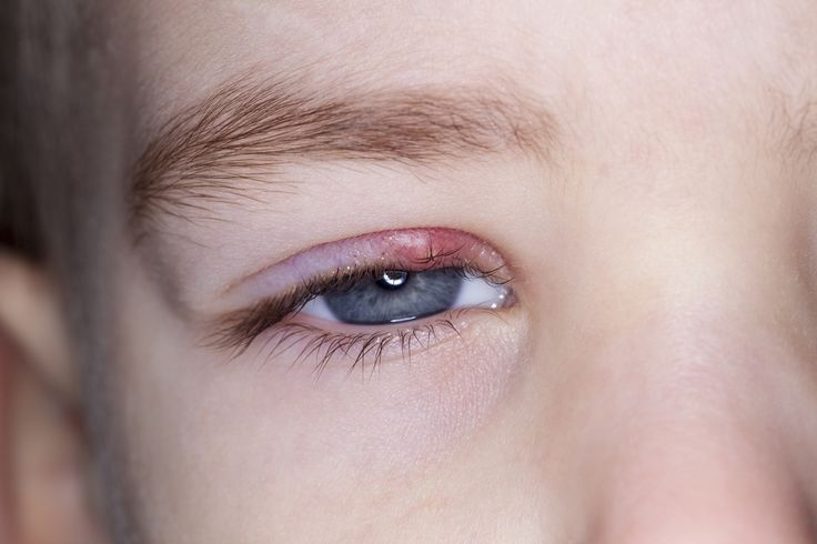 Don't suffer needlessly - try these remedies and be stye-free!