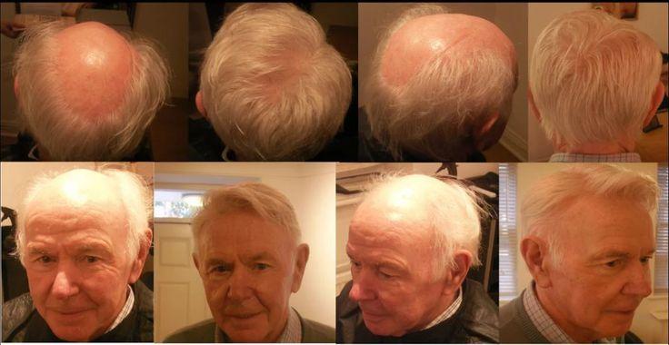 Foto: 100% resultat från vår step by step behandling. #håravfall +håravfall #tapparhår +tapparhår #hairloss