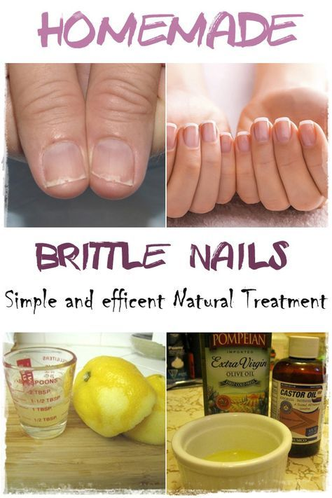 Homemade remedy for Brittle Nails.