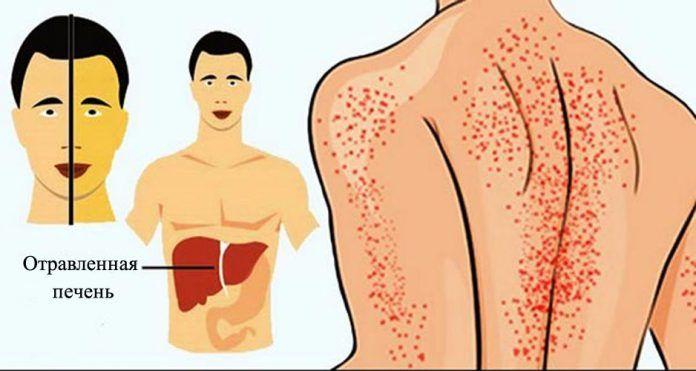 12 способов, как ваше тело пытается сказать вам, что ваша печень повреждена! http://bigl1fe.ru/2017/08/03/12-sposobov-kak-vashe-telo-pytaetsya-skazat-vam-chto-vasha-pechen-povrezhdena/