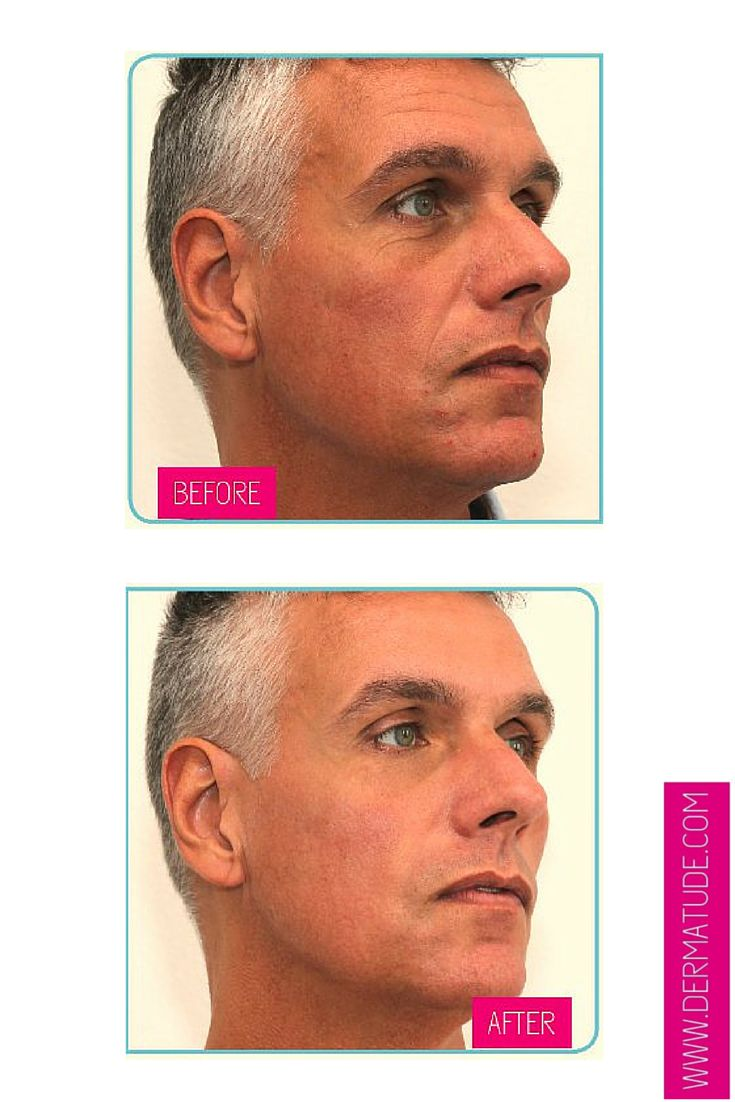 #Dermatude's #MetaTherapy treatment even works on men's skin! Check out this before and after and see for yourself: