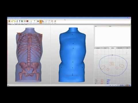 Canfit Design Software for Orthotics and Prosthetics