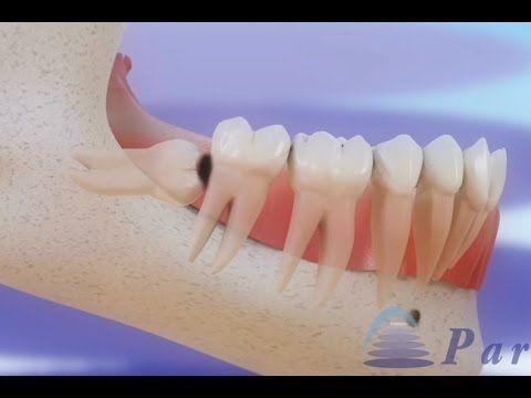 Pericoronarite e extração de dentes do siso ©