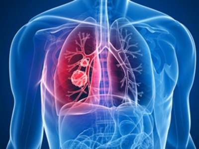 There are two major forms of lung cancer and they're differentiated on the basis of the structural appearance of the cancer cells under a microscope. These two major types of lung cancer are non-small cell lung cancer and small cell lung cancer. Here are key facts about non-small cell lung cancer (NSCLC), the most common.