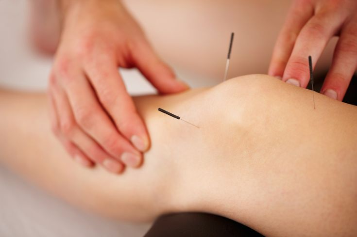 """""""Acupuncture for knee arthritis fails one test but may still be worth a try"""" Posted OCTOBER 01, 2014, by Daniel Pendick, Former Executive Editor, Harvard Men's Health Watch"""