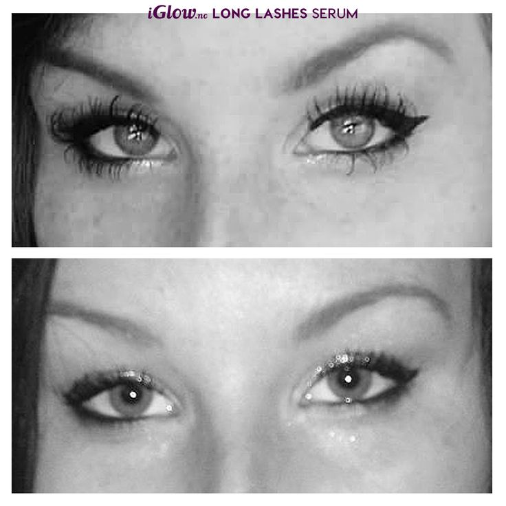 Før og etter iGlow Long Lashes Serum http://www.iglow.no/iglow_long_lashes_serum/