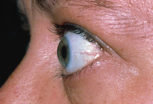 Graves' Disease  The most common cause of hyperthyroidism is Graves' disease. This is an autoimmune disorder that attacks the thyroid gland and triggers the release of high levels of thyroid hormones. One of the hallmarks of Graves' disease is a visible and uncomfortable swelling behind the eyes
