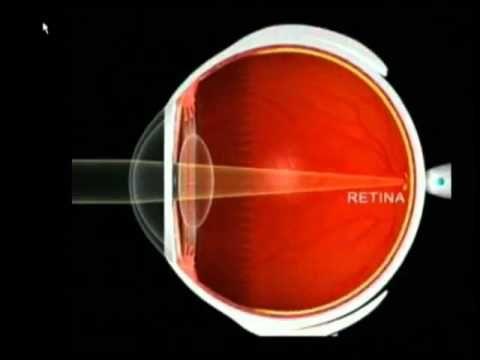 Hipermetropia, Miopia, Astigmatismo Enfermedades Visuales, Problemas Refractivos y LASIK YouTube - YouTube
