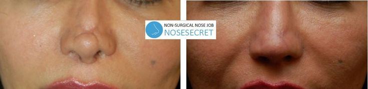 Non Surgical Nose Job After Rhinoplasty Looking for the best yet cheap nose job without actually going under the knife NoseSecret is a superior quality nonsurgical produc…