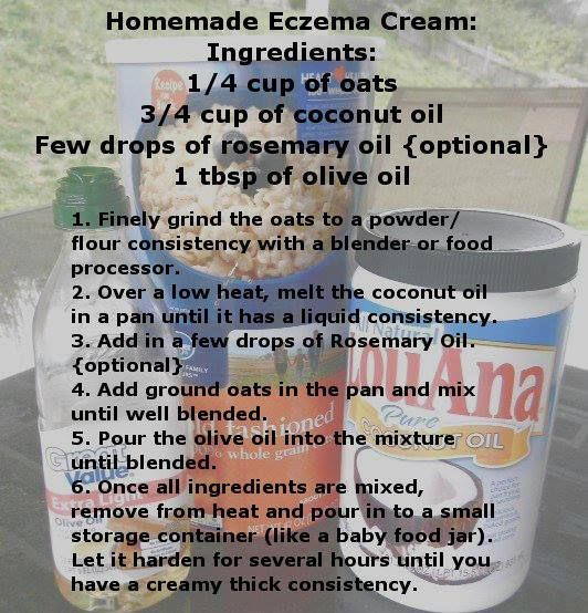 1000 Images About Eczema On Pinterest Homemade You