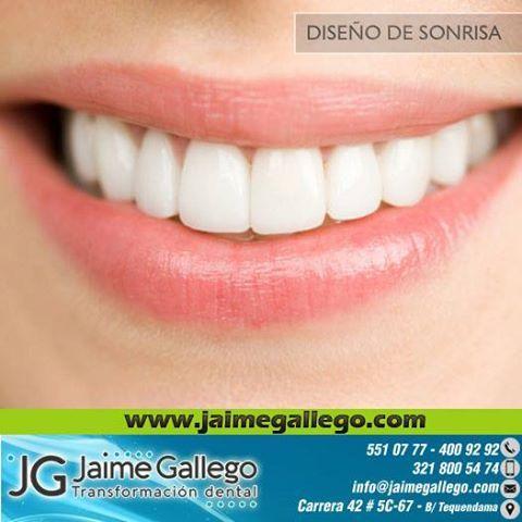 Las Sonrisas de Jaime Gallego #DiseñodeSonrisa #Implantesdentales #Cali
