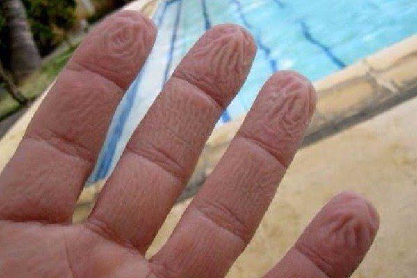 Γιατί ζαρώνουν τα δάχτυλά μας μέσα στο νερό