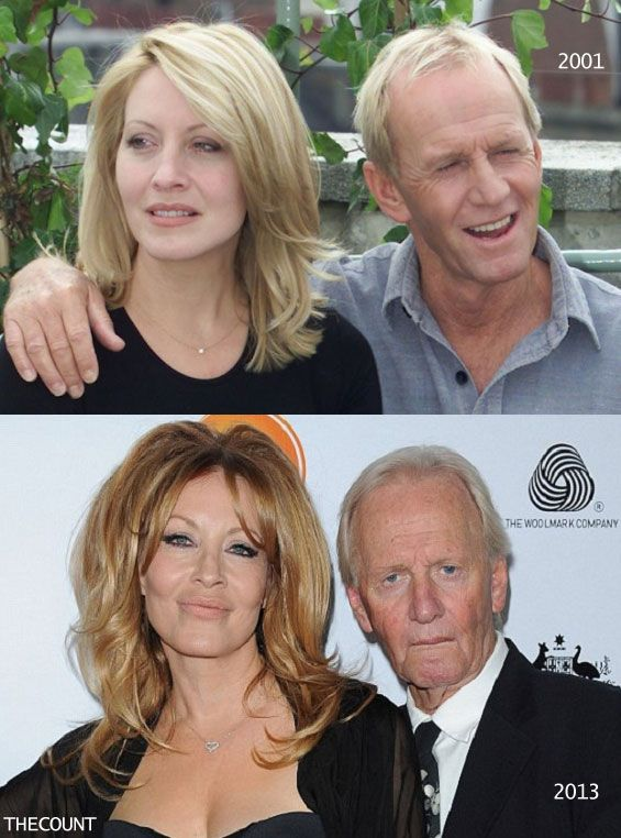 'Crocodile Dundee' Paul Hogan  & wife Linda Kozlowski, met on the set, married and had 1 son.  (Photo, January 15, 2013.)