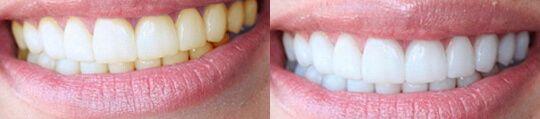Эффективное средство для отбеливания зубов дома