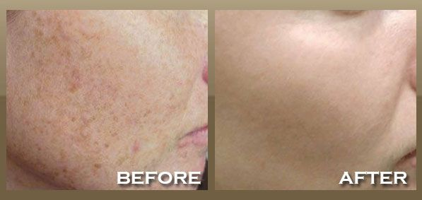 How to remove old Sun Damage using Intense Pulsed Light Photofacials