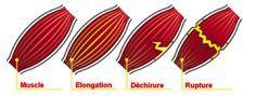 Blog 75: Infos santé : Sport et Santé-Claquage du mollet