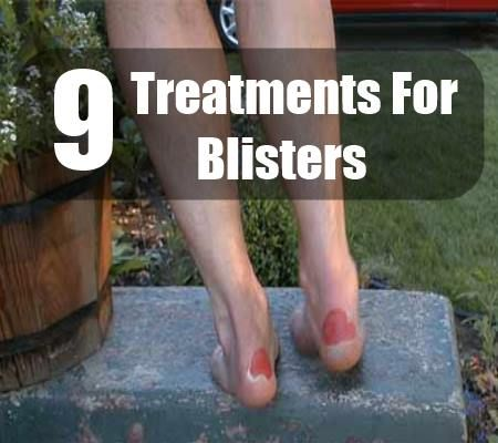 9 Effective Treatments For Blisters