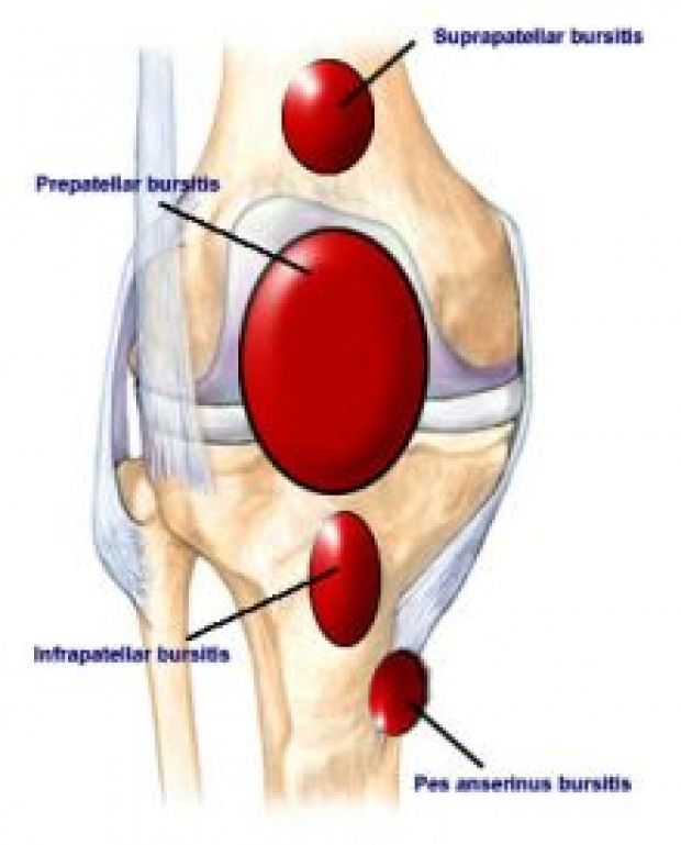Knee Bursa Small Fluid Filled Sacs That Sit Between Muscles And