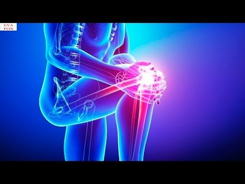 Goodbye to knee pain and joints in 25 days, thanks to this and without medicines - YouTube