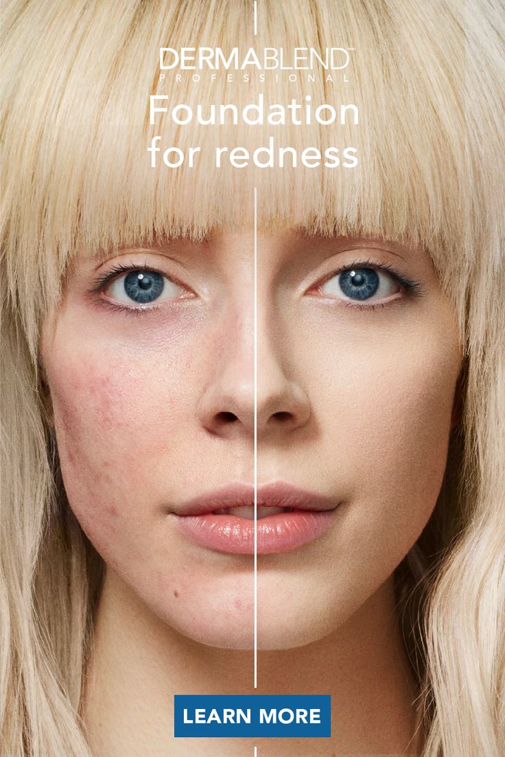 Find the right foundation to cover redness skin skin