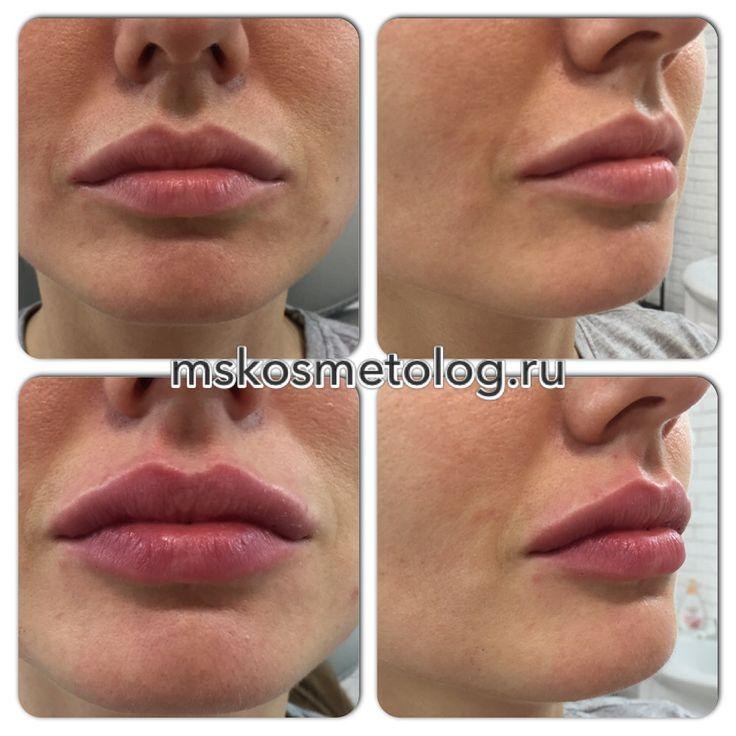 Увеличение губ, препарат Surgiderm 30xp