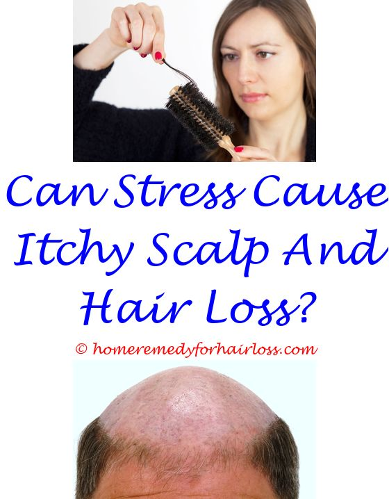 topamax hair loss zinc - does rogaine slow down hair loss.wigs for loss of hair in women on chemotherapy does biotin hair loss can tapeworms cause hair loss in cats 7853708080
