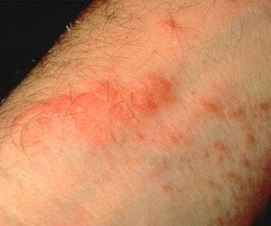 How to Spot and Relieve Rashes: Poison Ivy, Oak, and Sumac (via Parents.com)  Critical CPR  http://www.criticalcpr.com