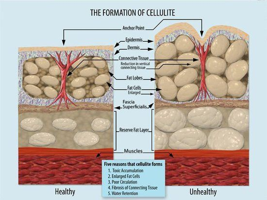 "CELLULITE HAS NOTHING TO DO WITH FAT! Yes, the more body fat you have the more you'll have ""pushing"" through the layers of fascia, causing deeper dents and dimples. But loosing weight, dieting and exercising WON'T fix your fascia! THAT's why I invented the #FasciaBlaster – but the benefits go SO far beyond #beauty it's incredible!  www.FasciaBlaster.com"