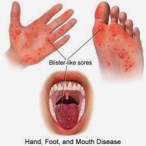 Solusi obat virus singapura pada anak, penyabab, gejala dan pengobatannya akan di bahas di sini dengan tuntas dan jelas.