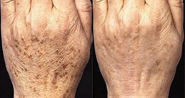 Cura pela Natureza.com.br: Elimine as manchas de idade com o melhor remédio caseiro para isso