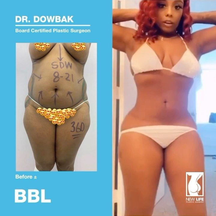 597 Likes 35 Comments New Life Plastic Surgery Miami Newlifeplasticsurgerymiami On Instagram The Best Results Surgery Doctor Liposuction Tummy Tucks