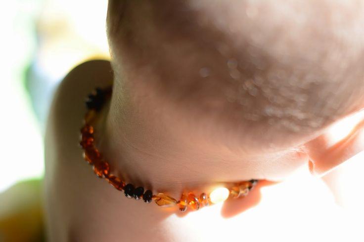 Teething Rash & Baltic Amber Teething Necklaces