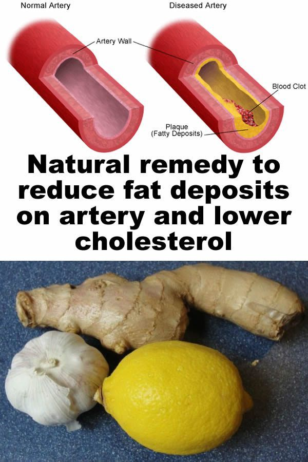 Remedy to reduce fat deposits on artery and lower cholesterol